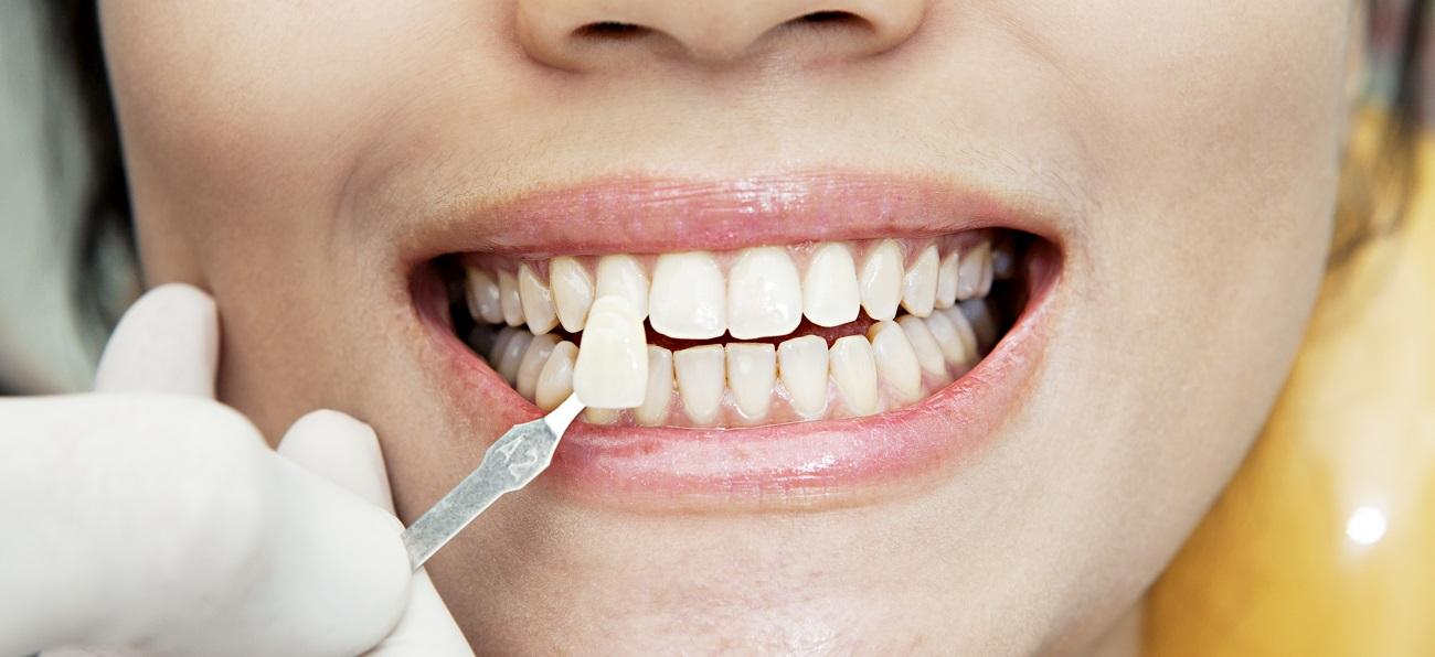 faccette dentali a roma dove farle