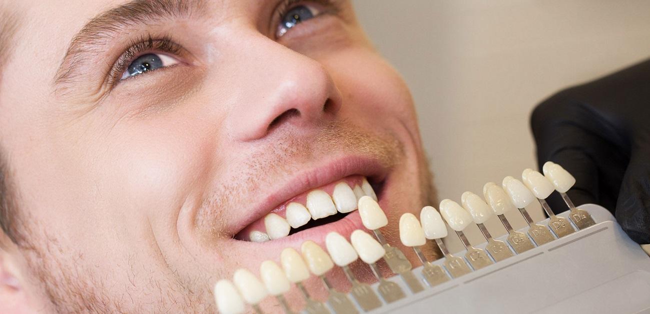 Faccette dentali a Roma: cosa sono e dove è meglio farle