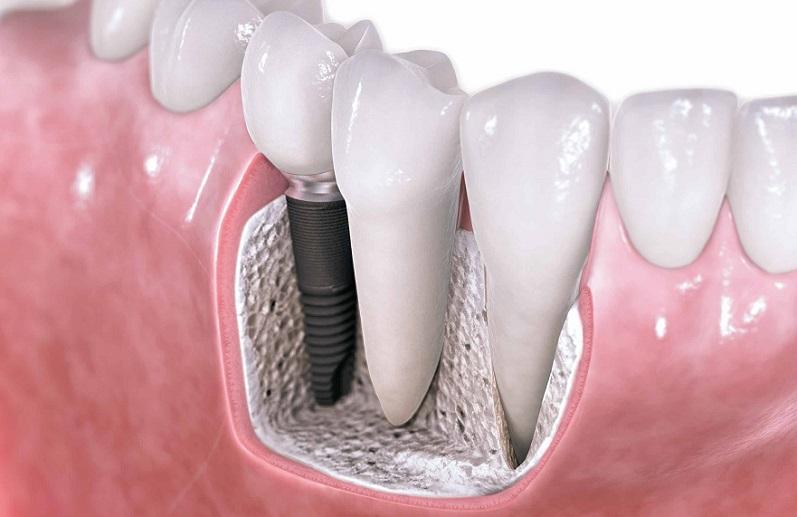 implantologia dentale a roma impianti