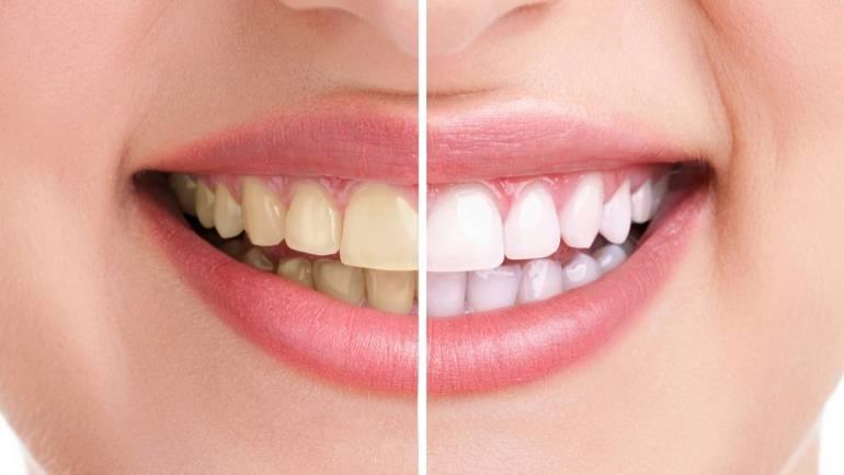 Sbiancamento dentale a Roma: cos'è e dove farlo